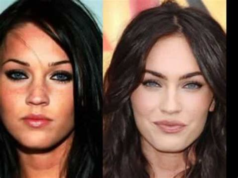 Hollywood Stars Before And After Plastic Surgery Youtube
