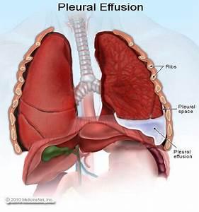 Pleural Effusion Treatment  Symptoms  U0026 Causes