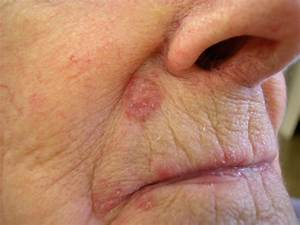Skin Cancer Pictures Moles Symptoms Signs on Face Spots on ...