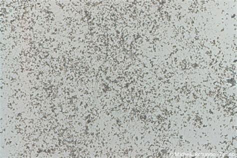 tappeto di urati amorfi crystalluria michele rotunno