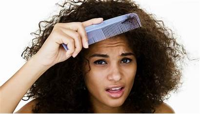 Hair Frizzy Thick Haircuts Curly Dry Dandruff