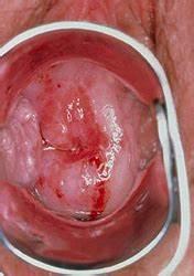 Вирус папиллома 16 лечение
