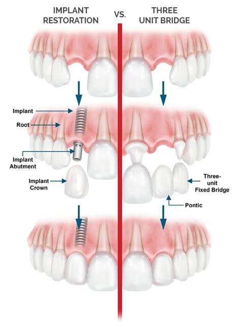 dental implants laguna niguel tooth extraction aliso