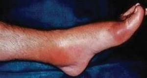 The Gout Diagnosis