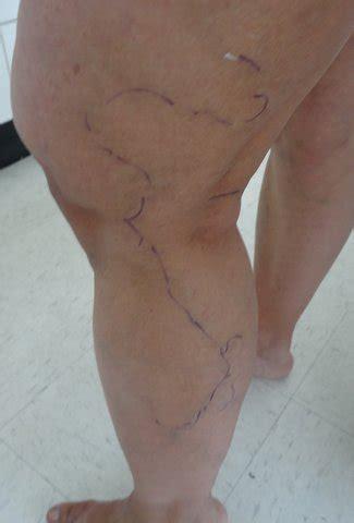 Phlebectomy – Bulging Veins | Laurea Cosmetic Surgery Sydney