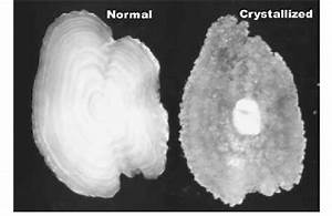 Photo Of Normal And Crystalline Type Otolith  Courtesy Or