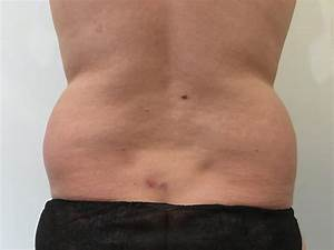 Love Handle Liposuction - Sydney AU My Cosmetic Clinic