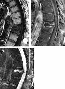 Osteoporotic Compression Fracture At T10 And T11 Vertebrae