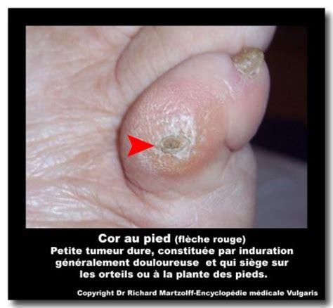jeux de au bureau image photo cor au pied dermatologie vulgaris médical