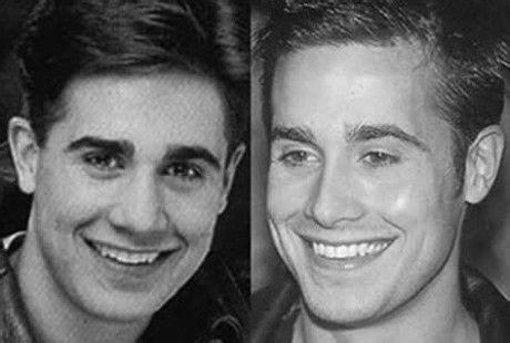 shocking nose jobs celebrity men    male