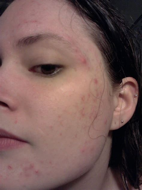 Acne Laser Treatment For African American Skin