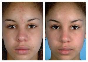 Skin Linghtening Voted #1 - skin lightening creams