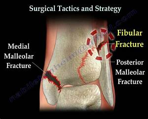 Ankle Fracture    Fractures And Its Repair