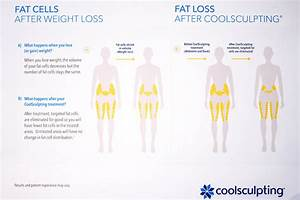 Slimmer Thighs With Zero Effort