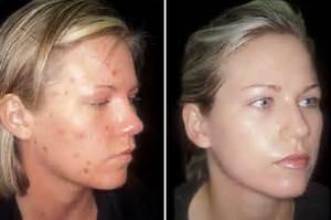 Tetracycline Acne Acne antibiotic treatment  Acne Tetracycline