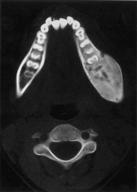 Chronic Recurrent Multifocal Osteomyelitis of the Spine