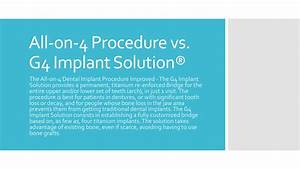 All On 4 Dental Implants Vs The G4 Implant Solution By