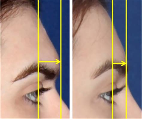 forehead contouring forehead reconstruction or shaving brow ridge