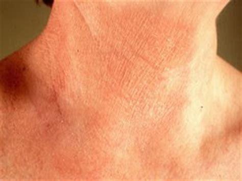 allergie wasmiddel symptomen