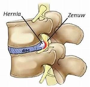 Hernia in de onderrug