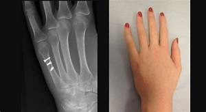 Hand Fractures and Dislocations | London Hand Surgeon