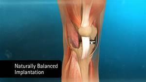 Солевой компресс от болей в суставов