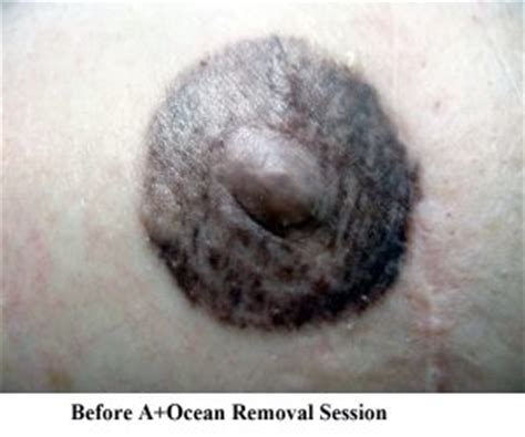 areola correction tattoo removal  ocean blog