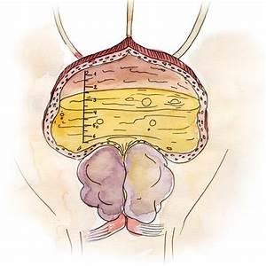Лечение простатита малахова
