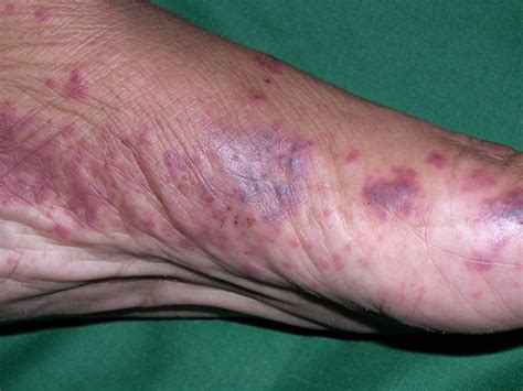 Medical Pictures Info Allergic Vasculitis