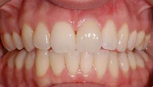 Mild Periodontitis Treatment