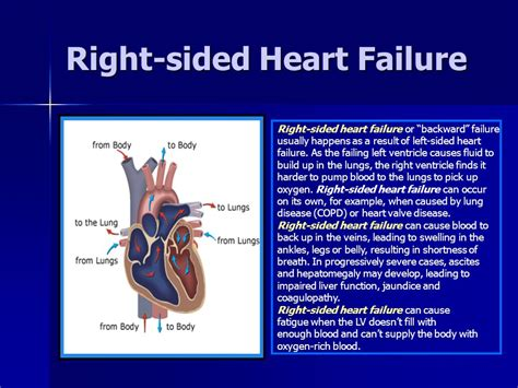 Systolic And Diastolic Heart Failure  Ppt Download. Overweight Signs. Mthfr Gene Mutation Signs. Top 5 Signs Of Stroke. February 8th Signs. Cafeteria Signs Of Stroke. Hieroglyphics Signs. Vertical Building Signs. Caused Fast Food Signs Of Stroke