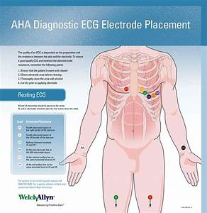 Welch Allyn Ecg Placement Wall Chart  71300
