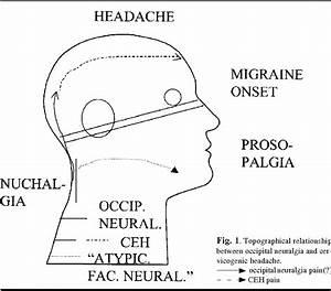 Cervicogenic Headache  Criteria  Classification And