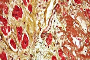 Cardiovascular disease - Wikipedia
