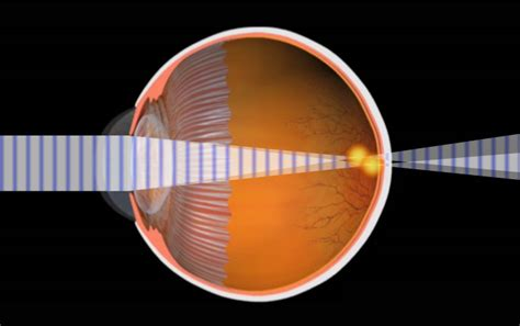 The lasik procedure for astigmatism involves reshaping your cornea. Astigmatism - Optometrist, Eye Doctor in Okemos, MI