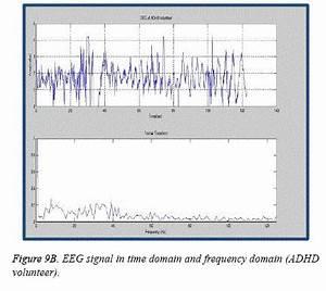 Development of arduino based low cost neuro-feedback ...