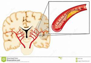 Atherosclerosis And Stroke Stock Vector  Illustration Of Cerebro