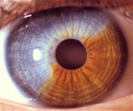 sector iris nevus   light colored iris iris light