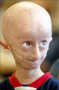 Progeria: Progeria Pictures