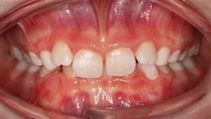 Waffeleisen Herausnehmbare Platten : optimierung dentofazialer sthetik zwp online das nachrichtenportal f r die dentalbranche ~ Orissabook.com Haus und Dekorationen