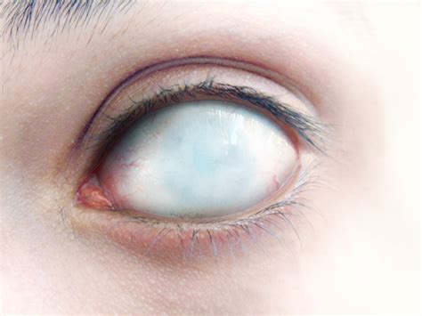 blind eye contacts blind eye by bizzar on deviantart