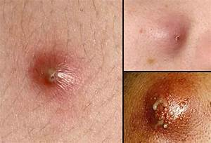 Boil Vs Pimple Pictures to Pin on Pinterest - PinsDaddy