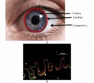 Eye Diagram Front