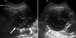 Ultrasound Of The Right Kidney  Longitudinal  Left  And
