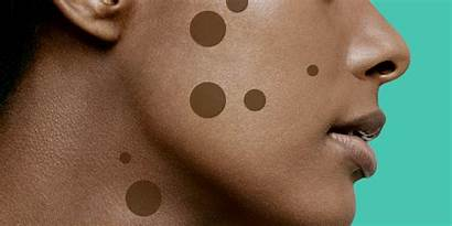 Spot Self Dark Treatments Really Remover Dermatologists