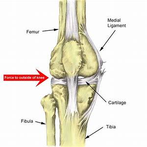 Medial Knee Ligament Sprain Treatment  Rehab  U0026 Exercises