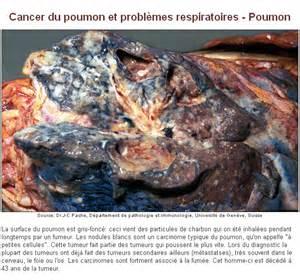 Cancer Du Poumon Stade 4 Espérance De Vie by Cancer Du Poumon