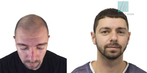 Hair Transplants in Turkey vs the UK - North East Connected