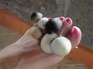 Мазь цинковая от грибка ногтей
