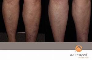 Laser Leg Vein Removal - Chicago & Northshore | Advanced ...